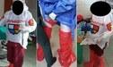 Coronavirus: Obstetras se visten con bolsas de plástico para atender a pacientes con COVID-19