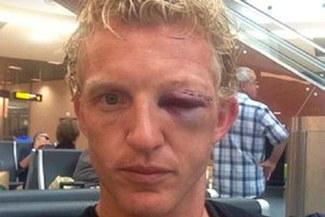 Dirk Kuyt quedó desfigurado tras brutal golpe con Jonathan de Guzmán [VIDEO]