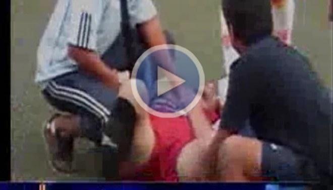 Jugador sufrió fractura de tibia y peroné en la Copa Perú