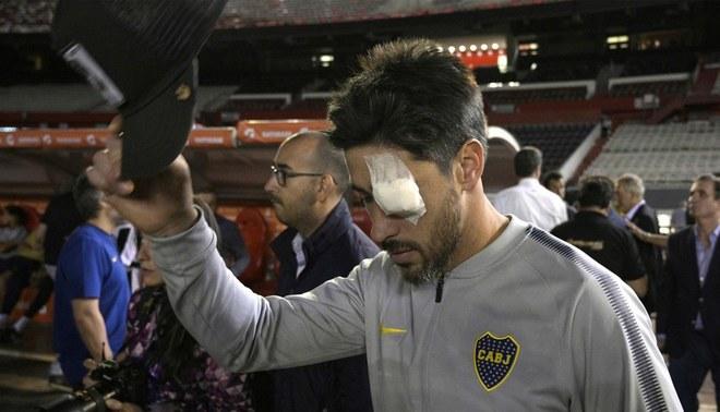 """Capitán de Boca Juniors: """"No puedo jugar en una cancha donde puedo llegar a morir"""""""