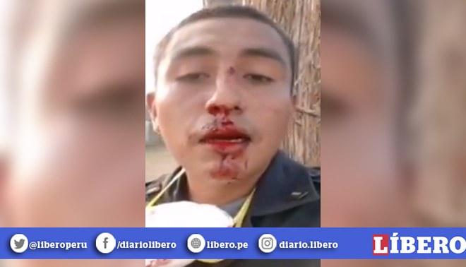 """Policía tras ser agredido brutalmente por un civil en Piura: """"Así nos pagan, rompiéndonos la cara con un palo"""". Créditos: captura de pantalla."""