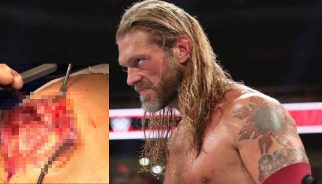 WWE: Edge confirma la gravedad de su lesión con impactantes imágenes | FOTO: WWE