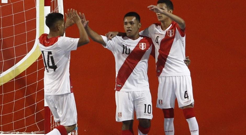 Selección Peruana: nuevo incidente de camisetas despintadas en pleno partido ante Chile